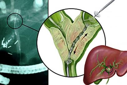 Как развивается рак желчных протоков?