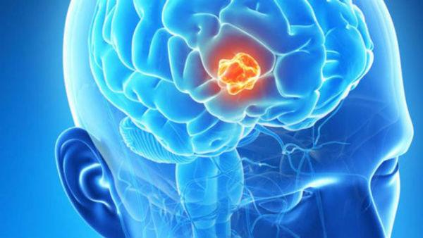 Глиома головного мозга, что это такое?