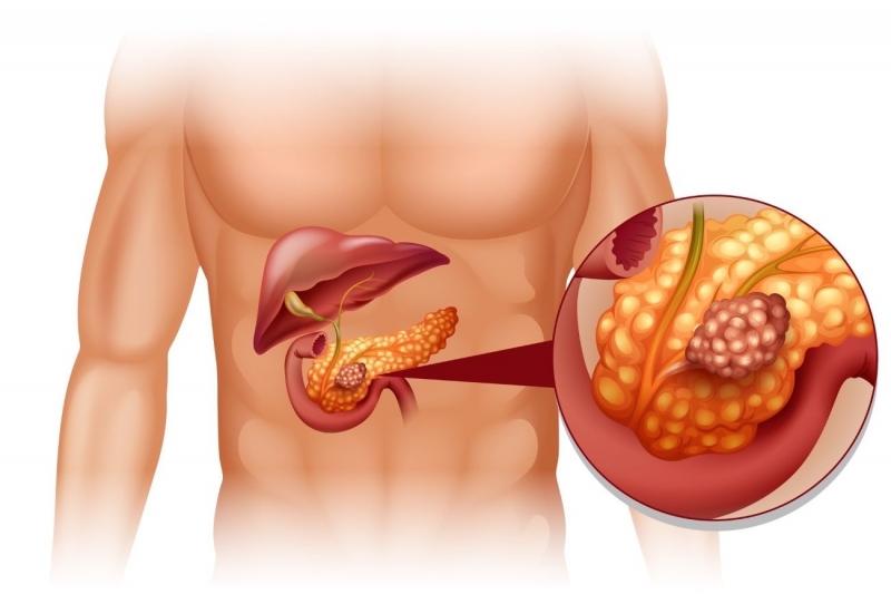 0 стадия рака поджелудочной железы