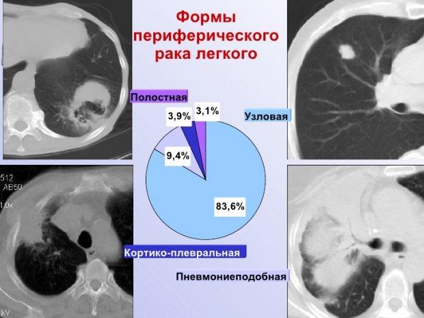 Формы периферического рака легких