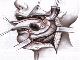 Причины возникновения рака полости рта