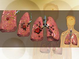 Лечение рака легких на ранней стадии
