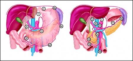Метастазы в лимфоузлах при раке желудка