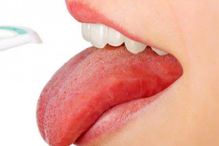 Методы лечения рака языка являются стандартными, они же применяются для лечения всех онкологических заболеваний: